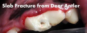 Slab Fracture from Deer Antler, Dog Tooth Injury